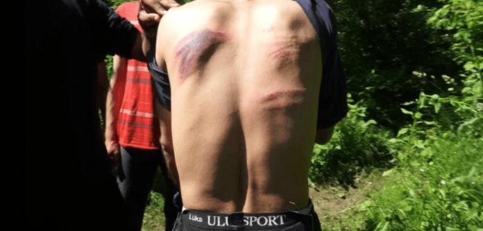 Un migrant își arată rănile, la granița dintre Croația și Bosnia Herțegovina, Sturlic, iunie 2021 Image source: Lighthouse reports via Libération